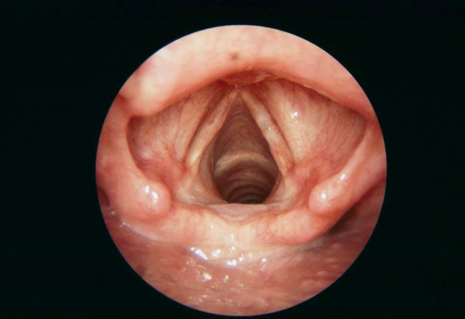 hpv vaccine papillomatosis