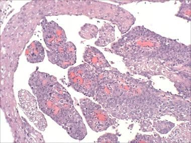 filiform wart on eyelid removal parazitii mambo 9