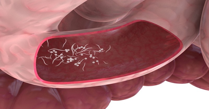 druhy parazitu v lidskem tele