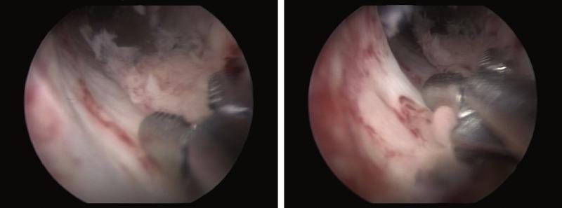 hpv urethral cancer)