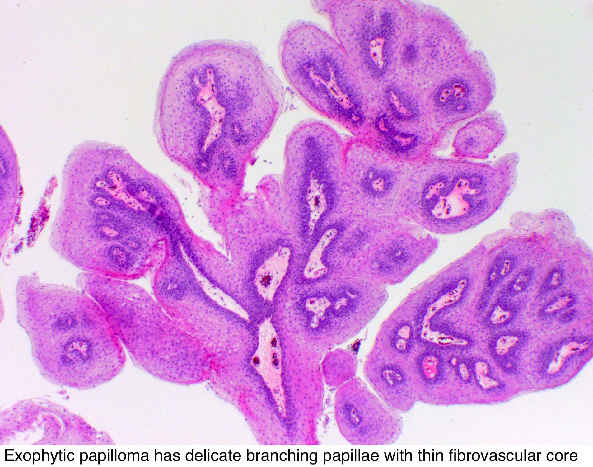 papilloma squamous cell)
