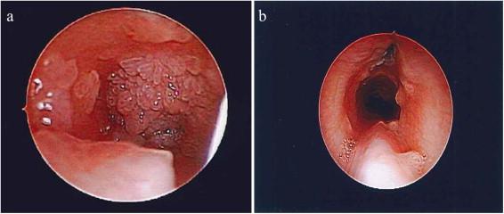 laryngeal papillomatosis onset