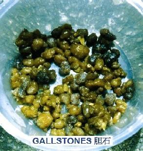 Reţetă completă de eliminare a pietrelor de la bilă