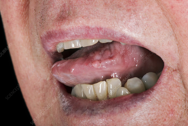 viral papilloma on tongue)