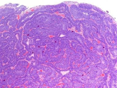 inverted urothelial papilloma histology)