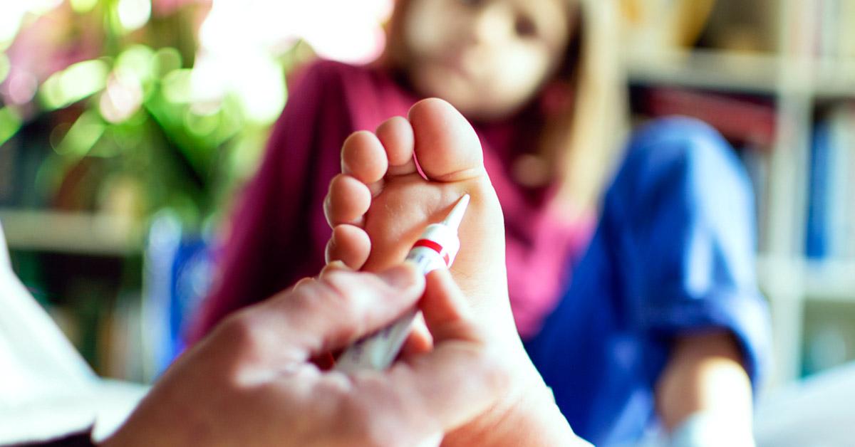 wart on foot salicylic acid