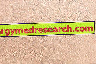 cancer de piele carcinom scuamos)