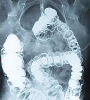 Cancerul de intestin subțire: Cauze și simptome