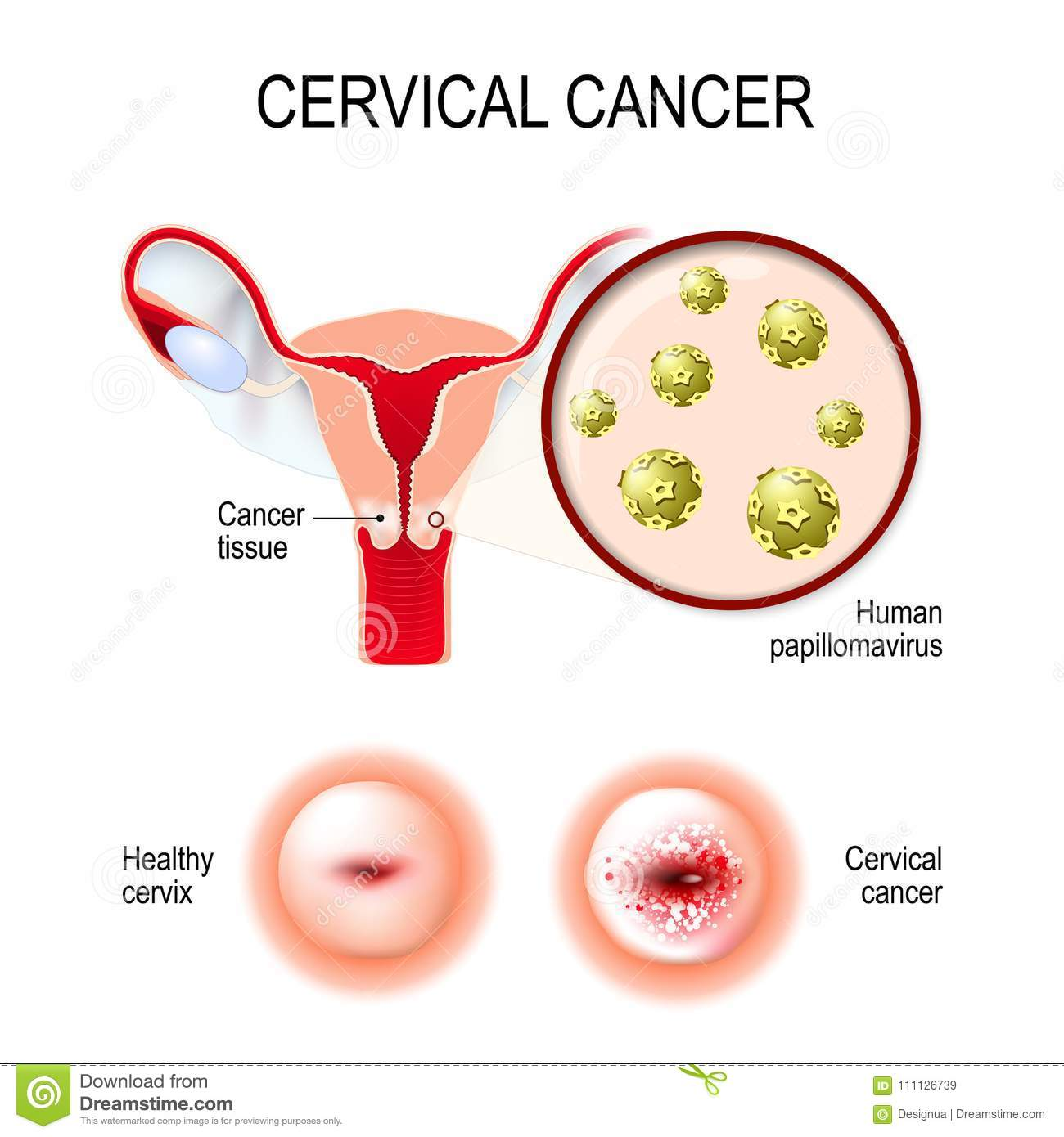 human papillomavirus infection cervical cancer