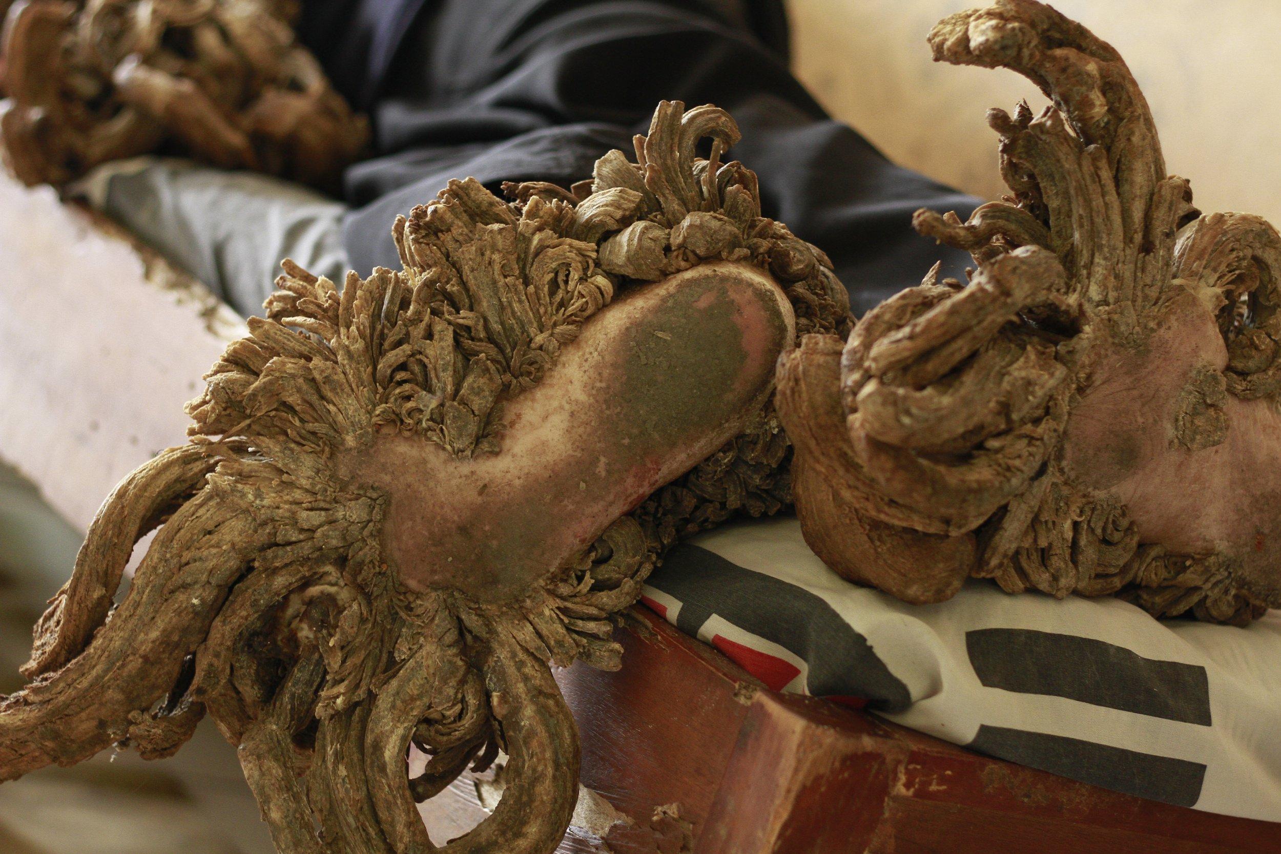 human papillomavirus tree man)