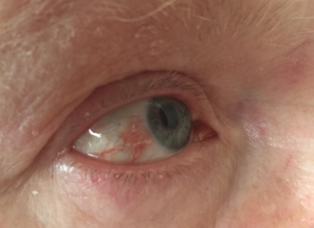 hpv red eye