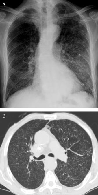 Cancerul pulmonar: cel mai mortal tip de cancer din lume   Regina Maria