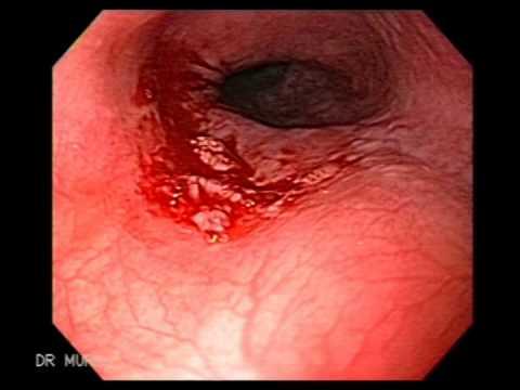 papiloma escamoso esofago