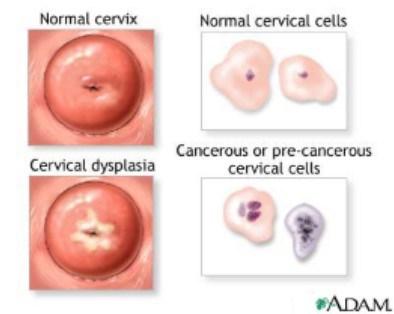 papiloma cancer boca)