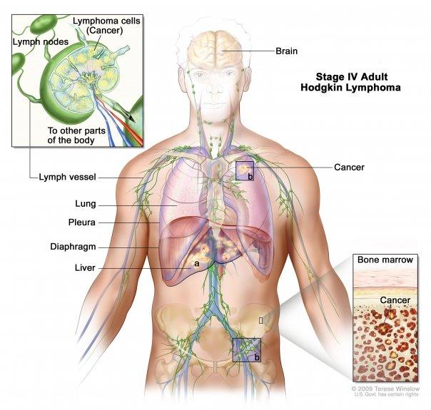 tratamiento natural para eliminar oxiuros