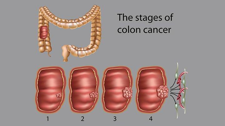 intestinal cancer curable