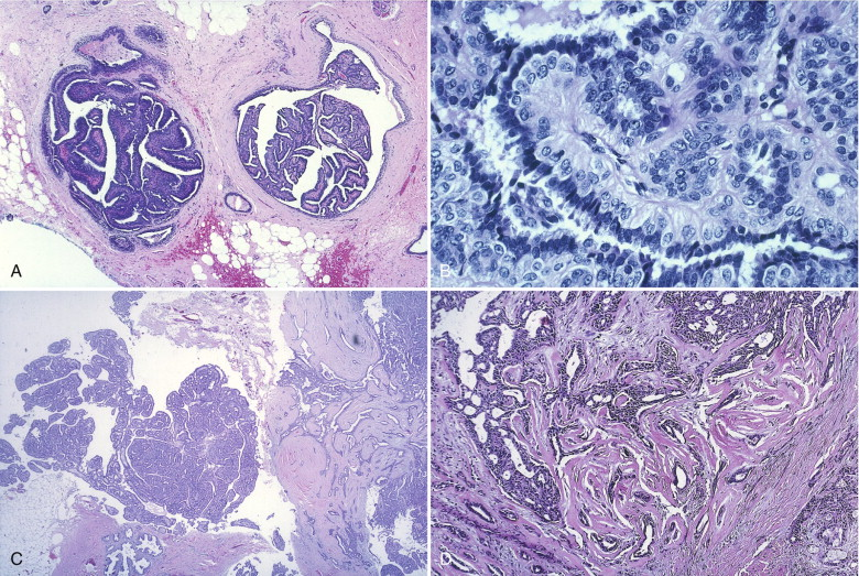 intraductal papilloma carcinoma of the breast)