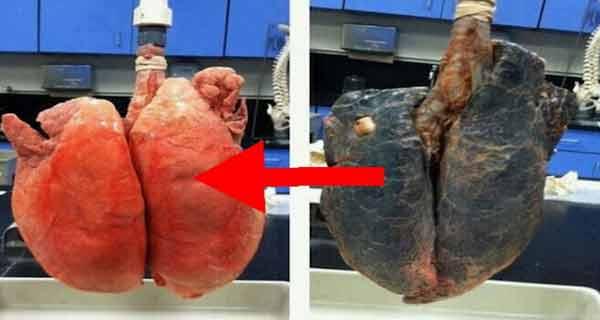 detoxifiere plamani fumatori