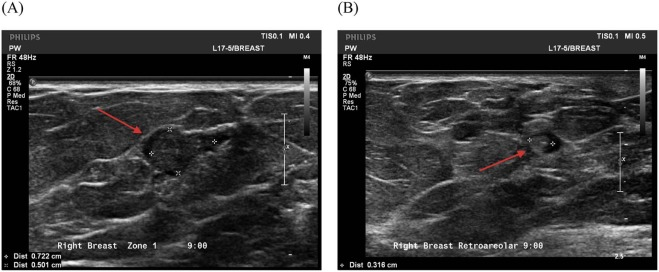 Breast Pathology, Diagnosis by Needle Core Biopsy - asspub.ro