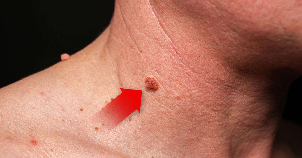 virus de papiloma humano provoca verrugas intraductal papilloma meaning in hindi