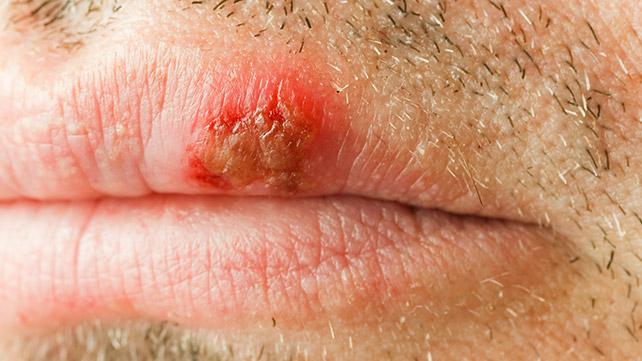 Herpes Genital | ARAS – Asociatia Romana Anti-SIDA