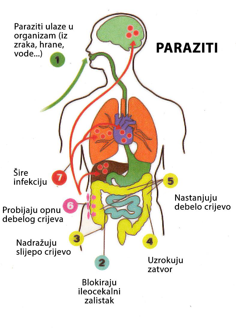 kako unistiti parazite u organizmu)