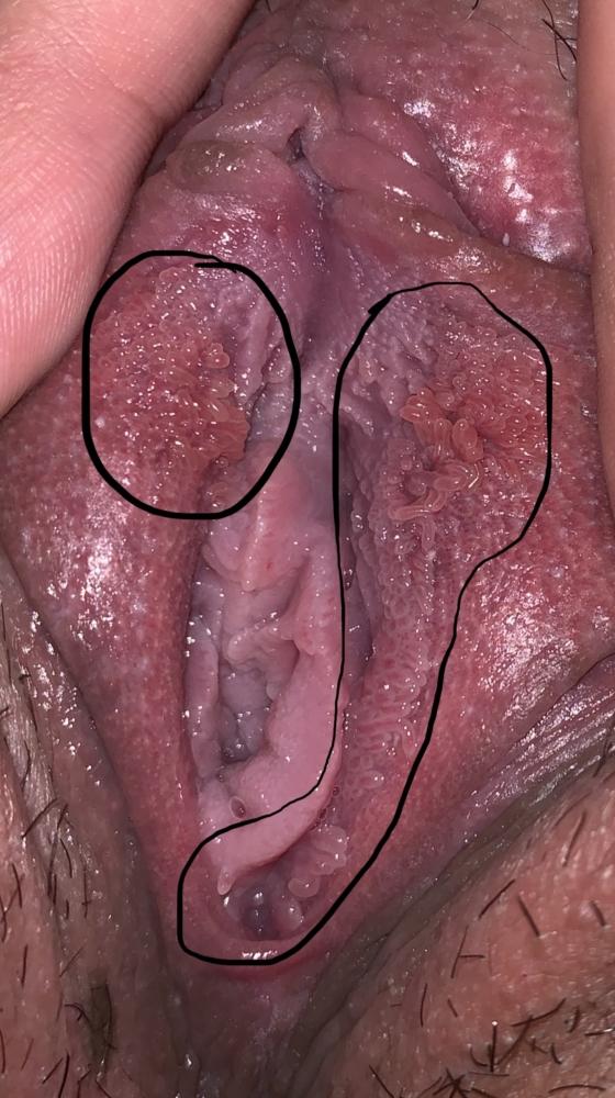 yeast infection and vestibular papillomatosis)