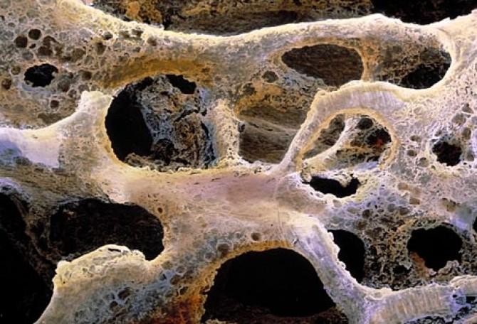 Simptomele cancerului osos, confundate cu cele ale artritei. Ce trebuie să știi această boală