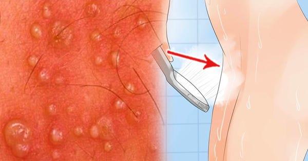 vestibular papillomatosis itchy and painful)