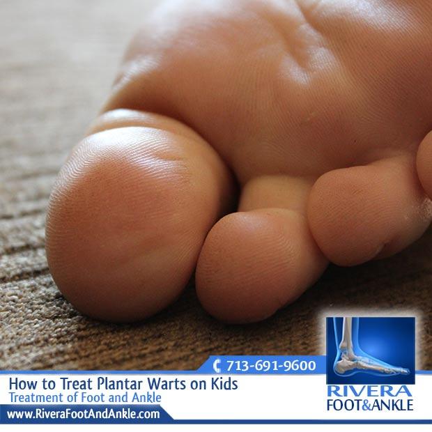wart foot kid