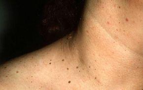 Indepartarea polipilor cervicali
