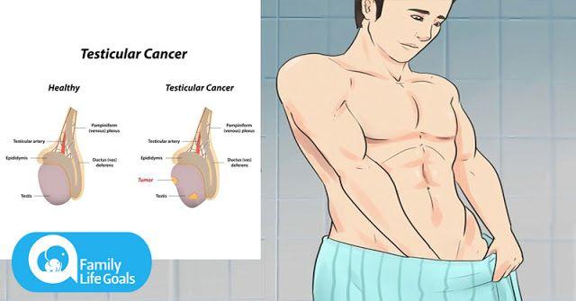 cancer testicule la barbati simptome