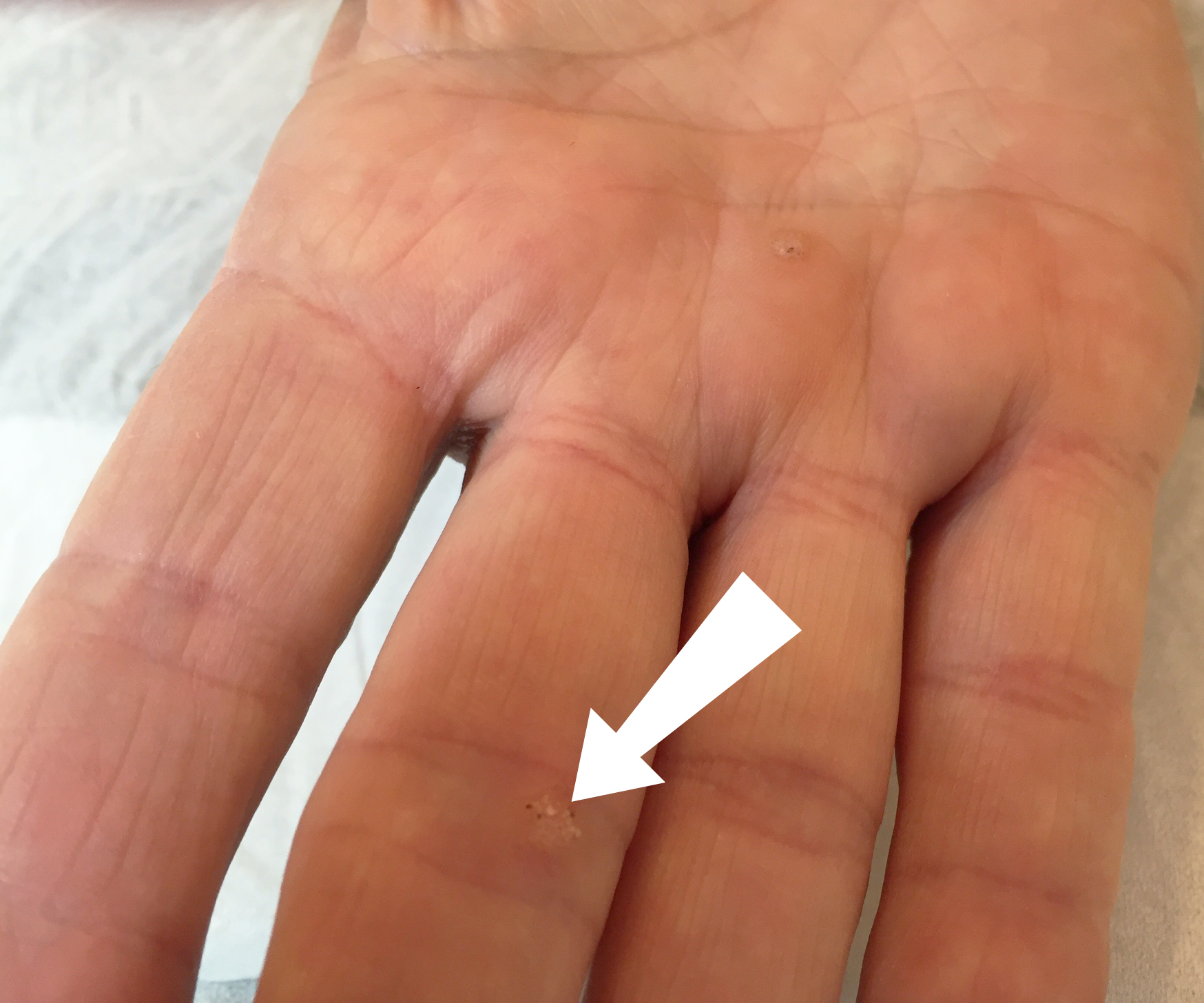 warts on hands during pregnancy