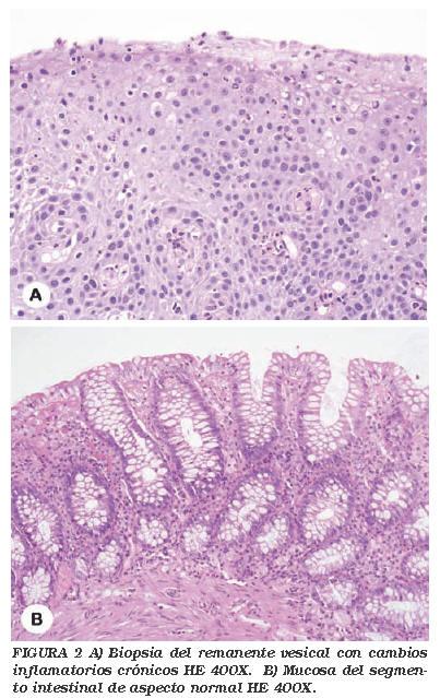 cancer de colon biopsia)