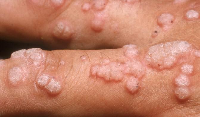 papiloma virus humano sintomas