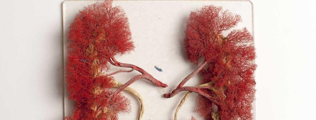 Cancerul la rinichi - simptome și tratament