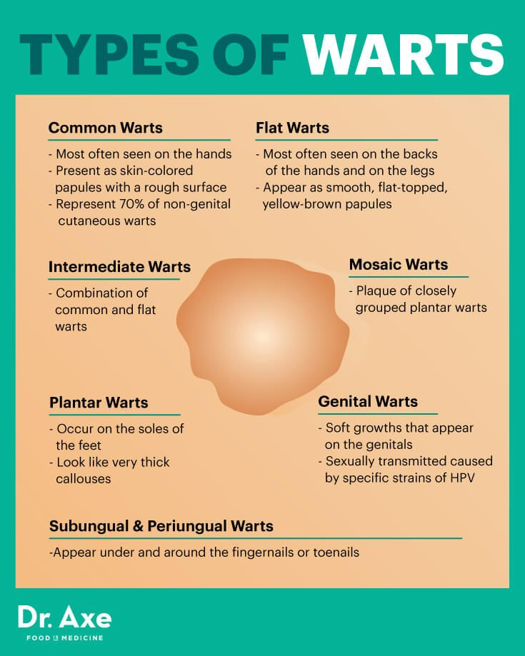 warts genital treatment home)