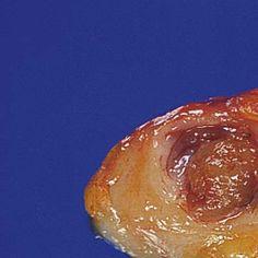 Radio-Oncologia Cancerului Genital Feminin (Bild) Iași, 2007