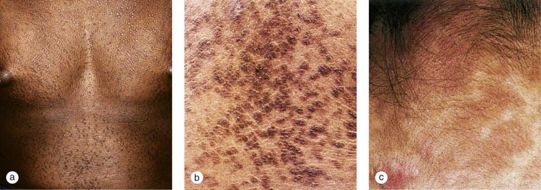 Varicele reticular și elipsoidale