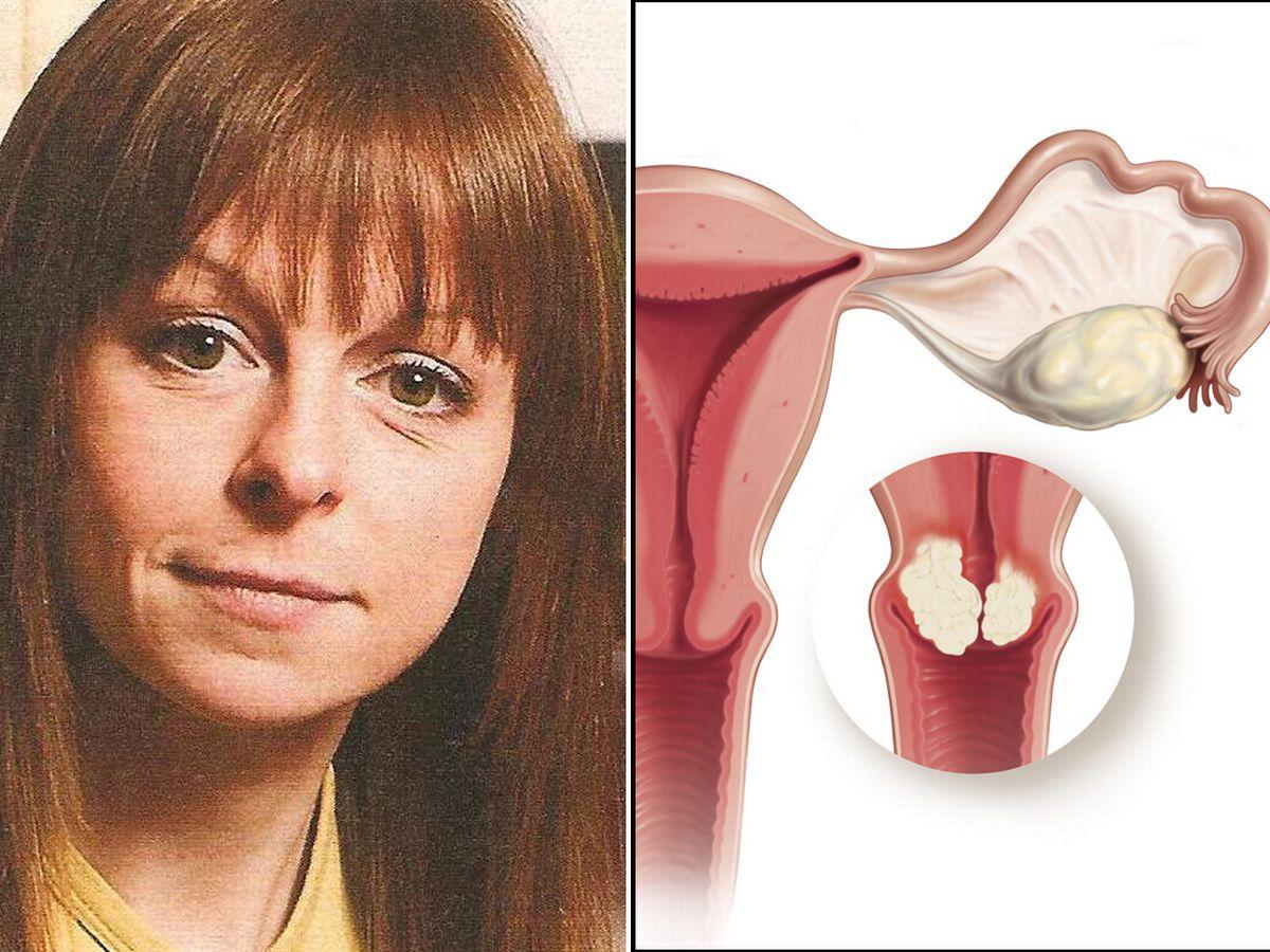 ovarian cancer virgin)