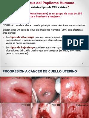 virus de papiloma humano cuello de utero)