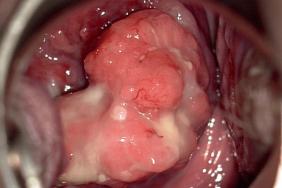 enceinte avec papillomavirus)