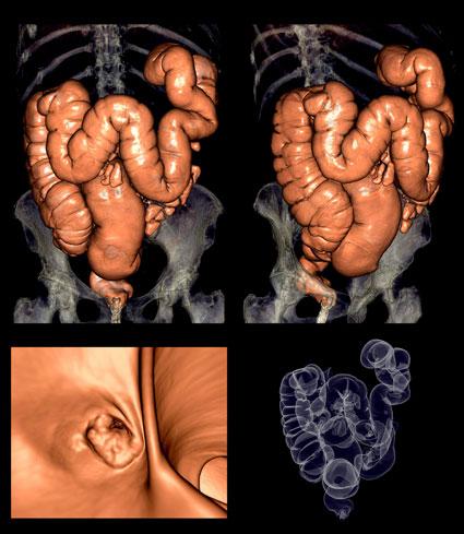 cancer pulmonar diagnostico diferencial