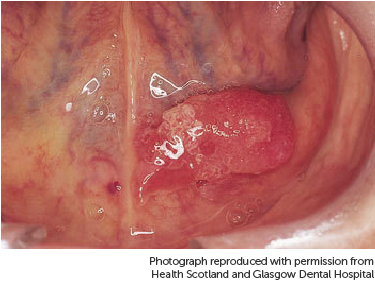 hpv growth in mouth