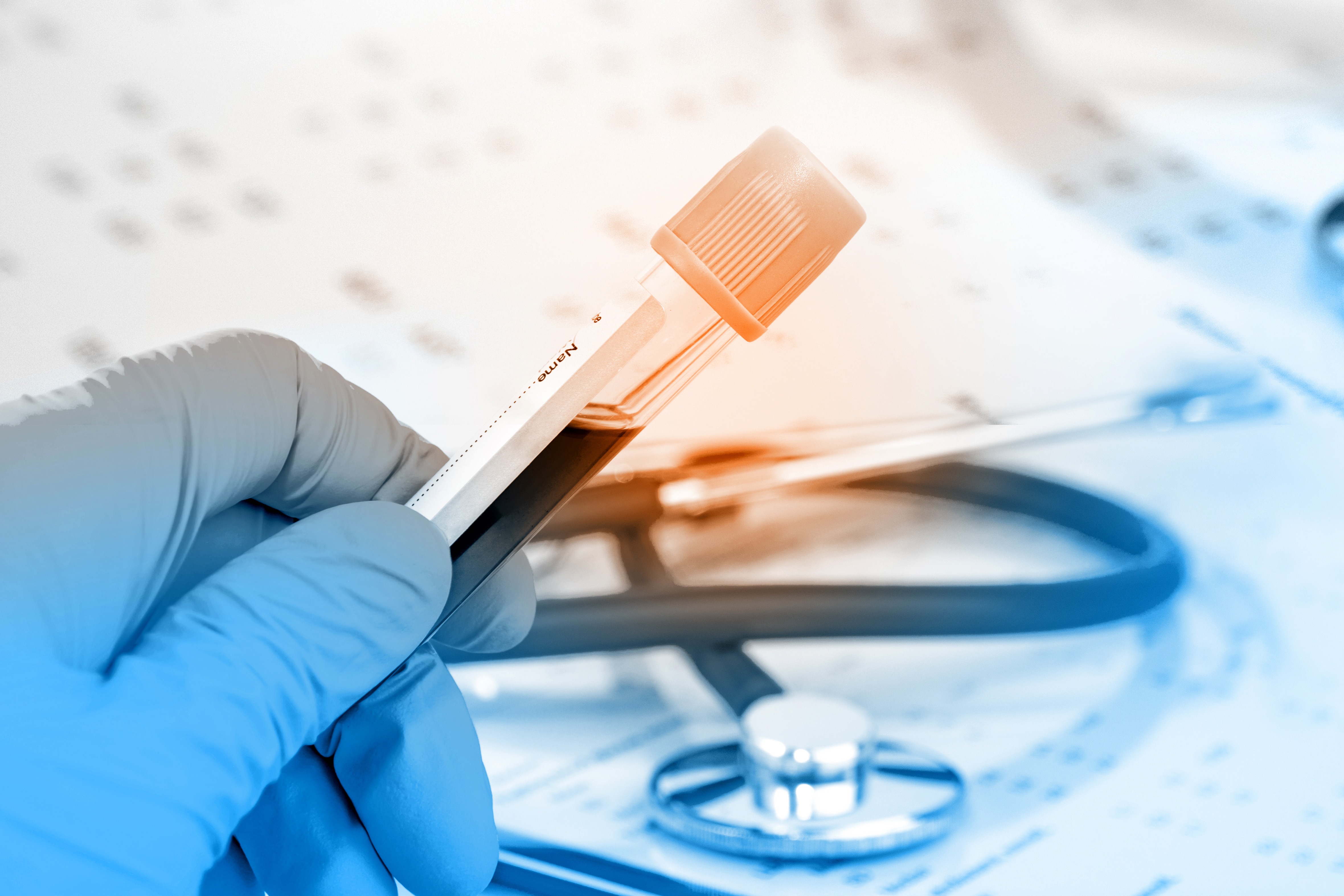 hiv anonim test