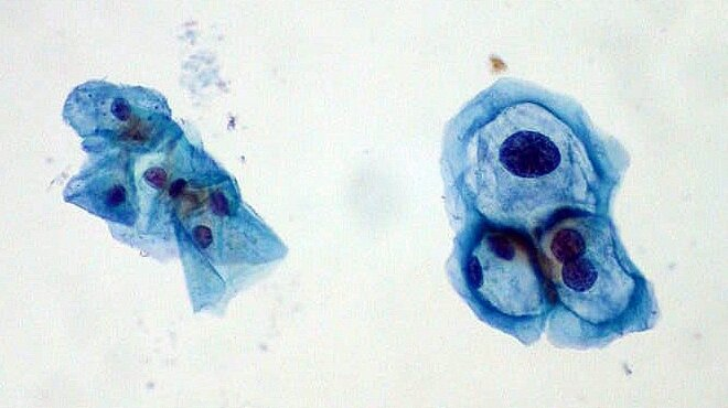 hpv virus and smears