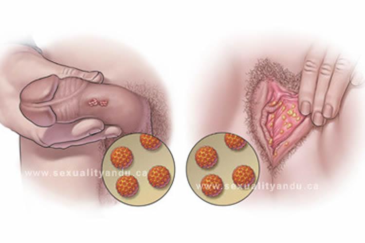 tratamiento para el virus papiloma humano en mujeres)