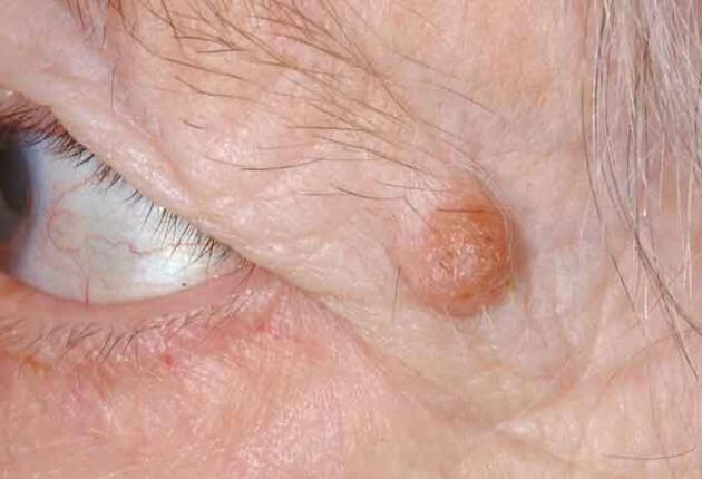 eye papilloma causes