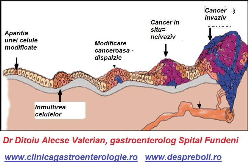 PET/CT pentru Cancer