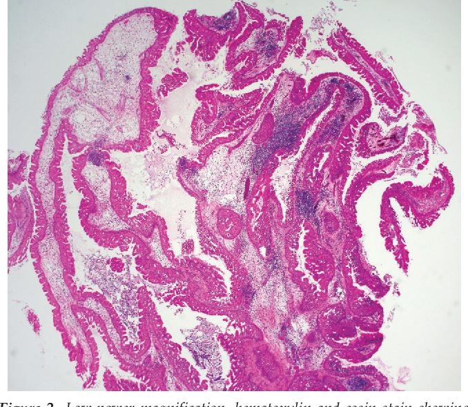 sinonasal papilloma exophytic type papilloma virus esami sangue